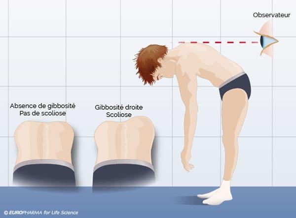 Scoliose de l'enfant, les parents peuvent facilement la dépister. La scoliose et ses symptômes.