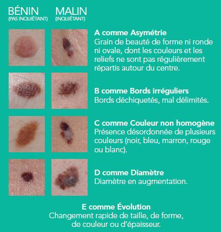 Comment détecte-t-on un cancer de la peau ? La « règle ABCDE »